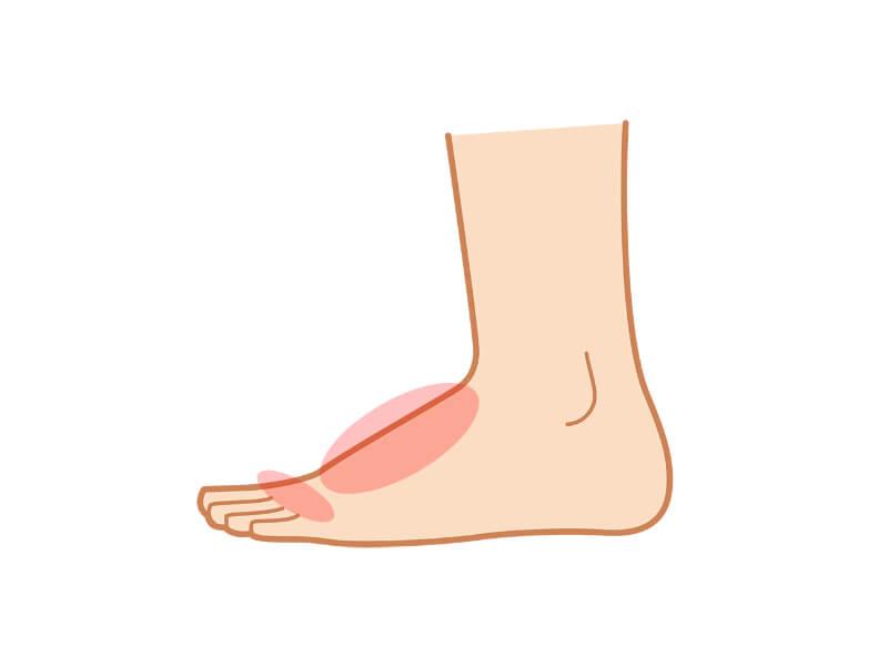 足の甲や指の根元が痛い場合